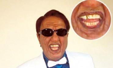 PROFESIONALAC: Tvoje lice zvuči poznato: Keba zbog Šabana ugradio zlatan zub!