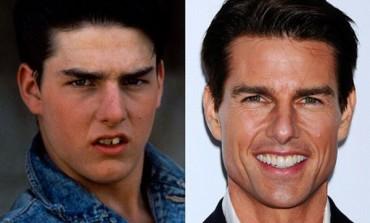 Zvijezde prije i poslije posjete stomatologa (FOTO)