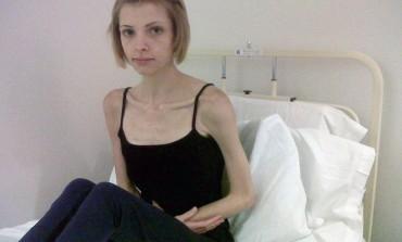 UZNEMIRUJUĆI SADRŽAJ: 19-godišnja djevojka toliko smršala da se i rođena majka počela pripremati za oproštaj!
