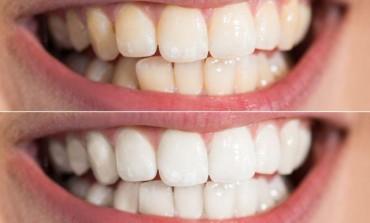 Blistav osmijeh bez odlaska kod zubara: Evo kako da uklonite zubni kamenac