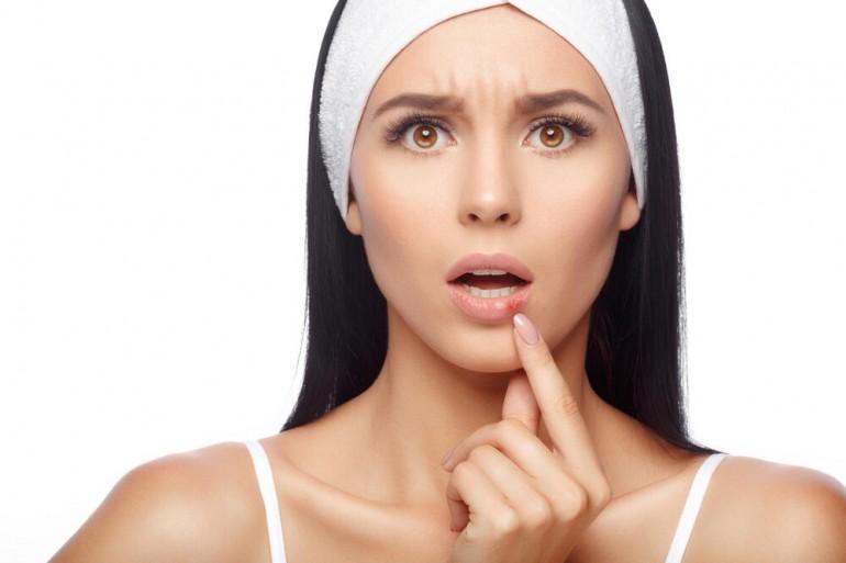 Bijeli luk, med, heljdino brašno, soda bikarbona… Riješite se herpesa uz pomoć prirodnih preparata!