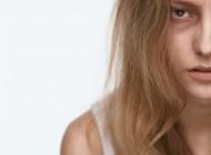 Kako da se riješite podočnjaka: 8 razloga zašto ste naduveni, a naspavali ste se