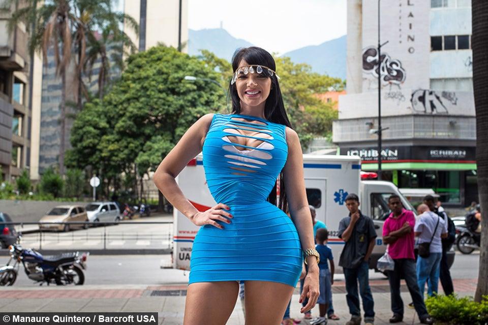 Sve za izgled barbike – Imala je 38. operacija i uložila 200.000 dolara