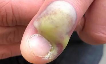 Grizao nokte, pa poslao upozorenje! Infekcija se počela širiti na ostatak ruke