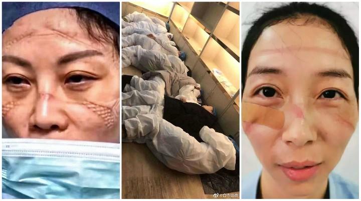 """""""Oni su anđeli, oni su heroji"""" – Medicinske sestre dijele fotografije kako izgleda njihovo lice nakon bezbroj sati borbe protiv koronavirusa"""